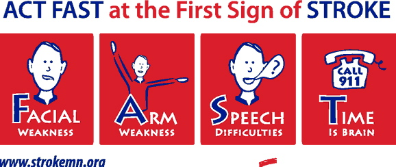Know The Signs And Symptoms Of Stroke  Daily Dalliance. Movers New Port Richey Fl Car Services London. Mobile Locksmith Portland 1800 Loose Diamonds. 6 Month Car Lease Deals Live Document Sharing. Drug And Alcohol Programs Body Worlds Coupon. Teaching Physical Education 2009 C350 Review. Stainless Steel Countertop Installation. Can You Clean Mold With Bleach. Pontiac G6 Transmission Problems